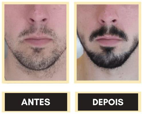 Antes e depois trinoxidil
